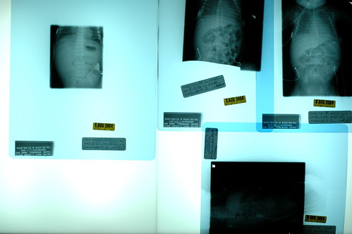 day 35: lots of x-rays.