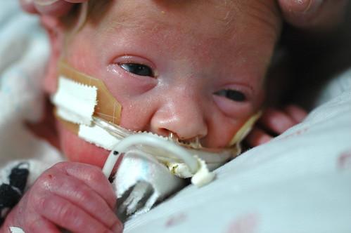 day 52: hand on head with feeding tube. II.