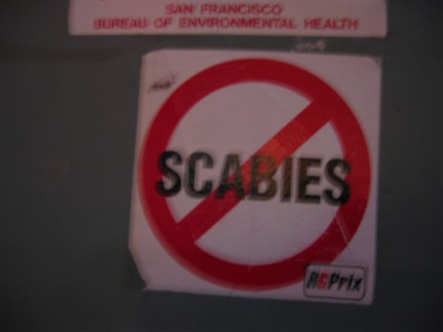 scabies