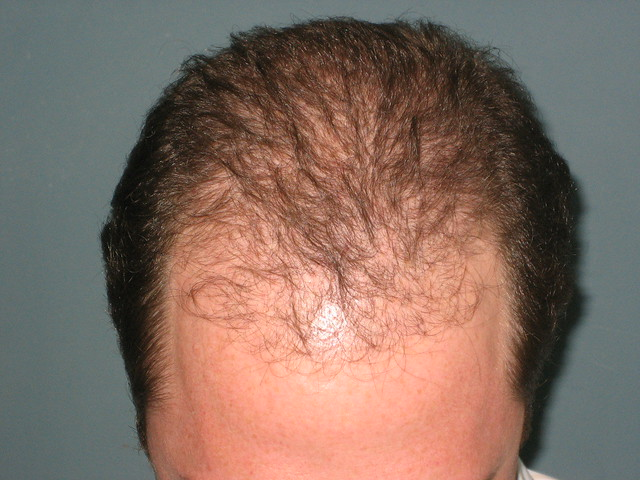 Bosley Hair Restoration Propecia