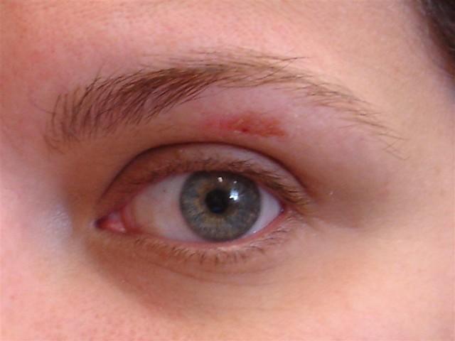 eyebrow wax gone wrong...
