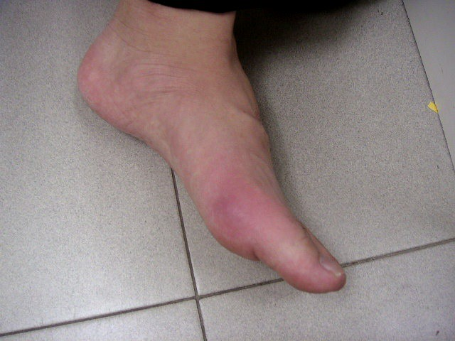 Acute Gout Flickr Photo Sharing
