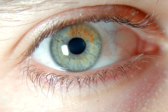 Sectoral heterochromia | Flickr - Photo Sharing!