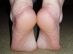 sole, muscle, limb, foot, organ,