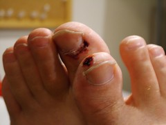 finger, limb, leg, foot, close-up, nail, toe,