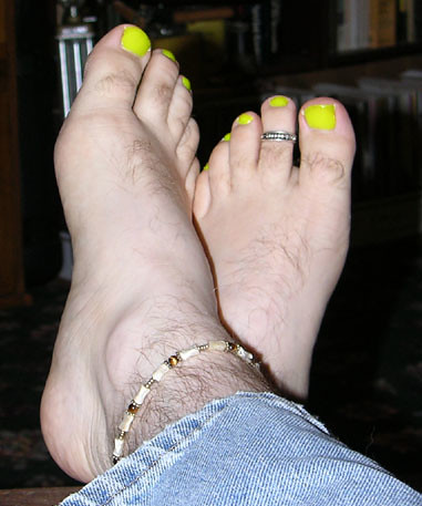 Why are my toenails yellow ! does eny1 think its likely 2 be a