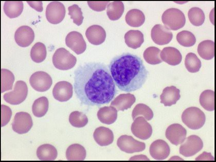Hairy cell leukemia - Symptoms and causes - Mayo Clinic