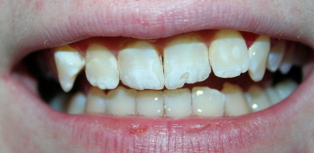 4d5e5f87af Growing new teeth could be a matter of taking an Alzheimer s drug. Photo by  Chapendra on Flickr. »