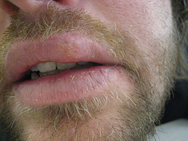 natural way to get rid of herpes mouth