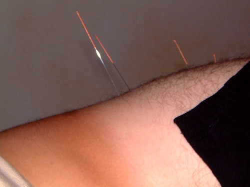 What You Need To Know About Getting Acupuncture