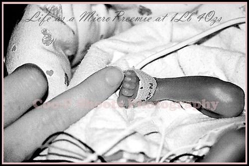 BABIES BORN AT 36 WEEKS GESTATION : BABIES BORN AT - BABIES