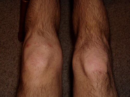 Knee swelling, 26 days after surgery