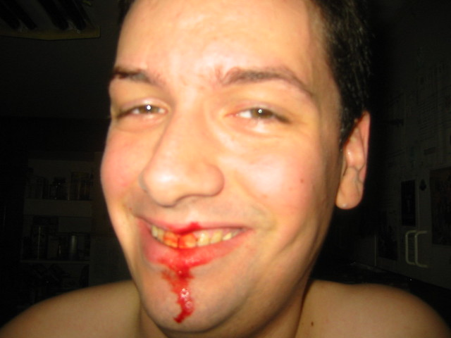 how to stop a shaving cut from bleeding