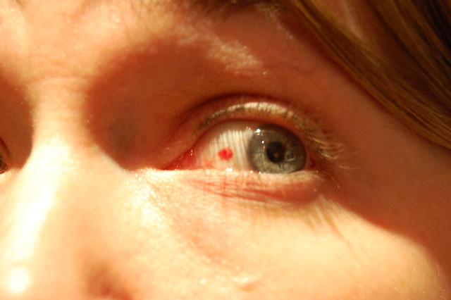 Burst Blood Vessl In Th Eye Of A Dog