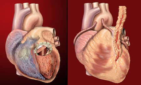 Human heart, anterior view, artificial valve, coronary bypass