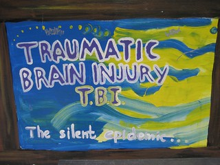 Dallas Brain Injury Lawyer