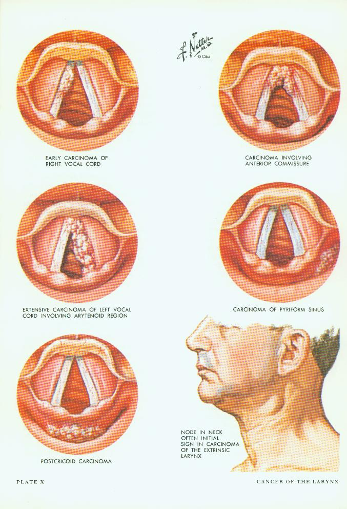 Muscles of Pharynx: Median (Saggittal) Section Musculature ... |Larynx Anatomy Netter