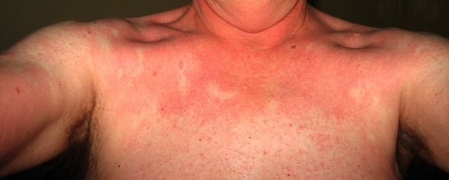 Viral Rash In Adults Picture - Health For You