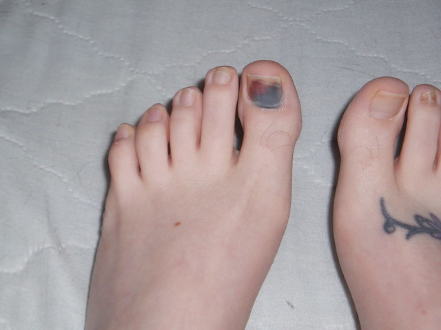 Houston bruised toenails are not fungus