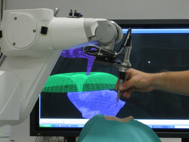Robotic surgery used in tubal reversal