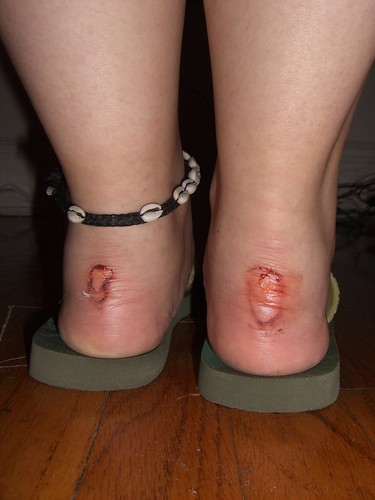 Hubiese sido mejor volver andando descalza por la calle bajo la lluvia que seguir con los zapatos puestos