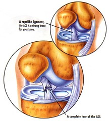 My Torn ACL