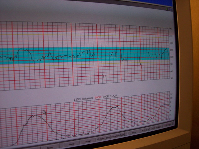 Monitoring the Contractions | Flickr - Photo Sharing!