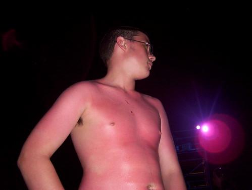 Sunburned at Street Scene