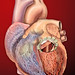 Heart with artificial mitral valve