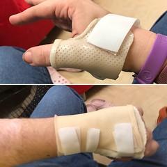 Two custom splints