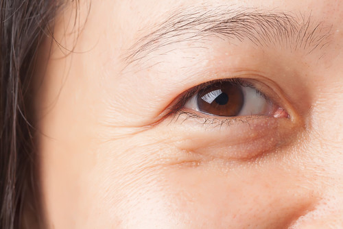 Dr. Joel Schlessinger discusses how to minimize under-eye puffiness.