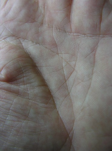 43360372 2064048ee7 Palmistry: is there any meaning to freckles on the palm or palm side of fingers?
