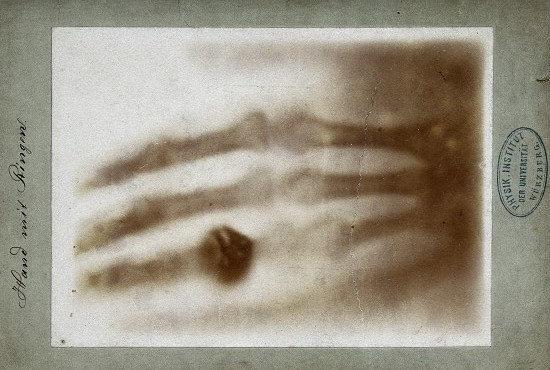 A print of one of the first X-rays by Wilhelm Röntgen of the left hand of his wife