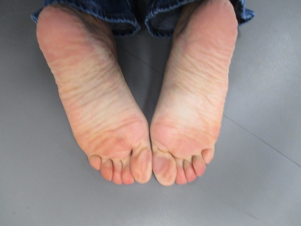Wrinkled soles tickle