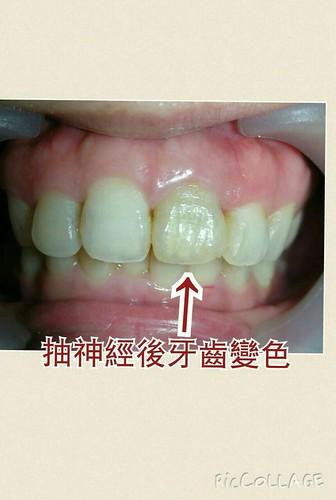 美嬌娘怎能有黃板牙?結婚前來台中豐美牙醫牙齒美白改造一下! (7)