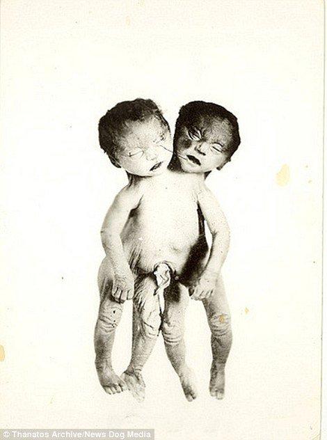19 世紀流行的人類畸形秀 FREAKSHOW21