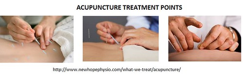Acupuncture in Brampton Treatment - New Hope Physiotherapy