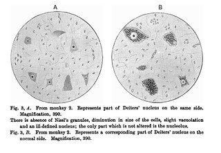 Fig. 3 from R.E. Lloyd, 'On chromatolysis in Deiters' nucleus after hemisection of the cord', Journal of Physiology 25 (3) (1900), pp. 191-195.