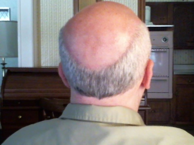 bald head and receding fringe from the rear