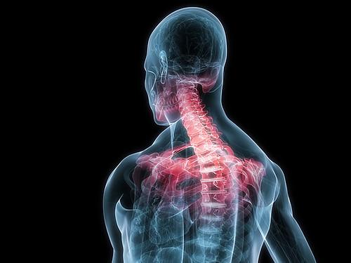 Dành cho người bệnh thoái hóa đốt sống cổ và lưng