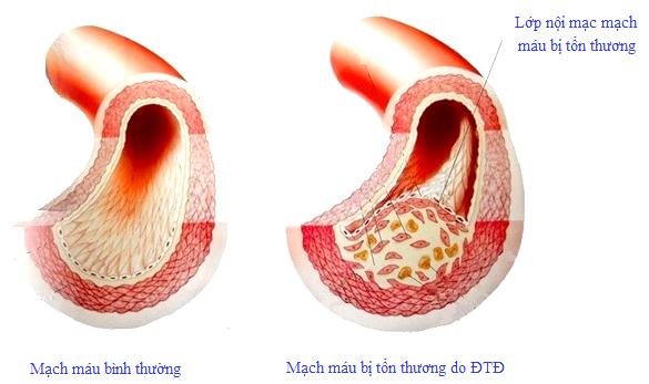 Biến chứng mạch máu do đái tháo đường