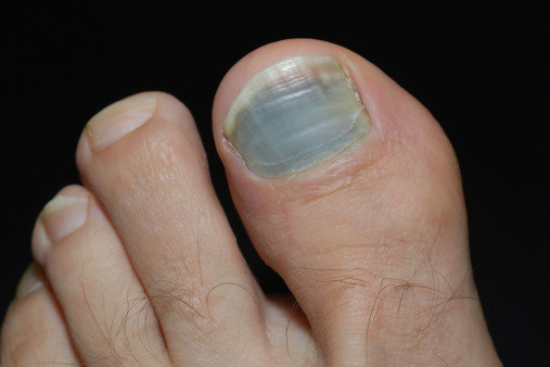 Red spot under toenail
