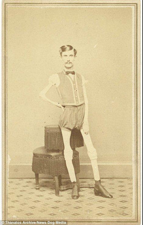 19 世紀流行的人類畸形秀 FREAKSHOW13