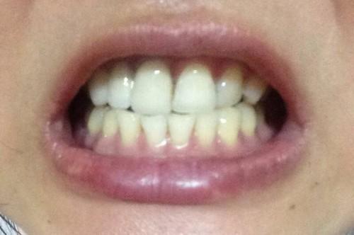 高雄前金區牙醫推薦_高雄西河牙醫診所_居家牙齒美白 (10)