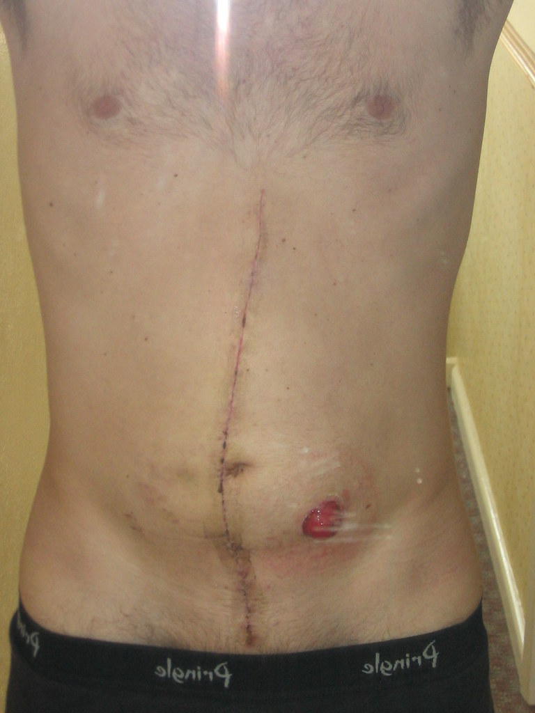 post op scar & stoma
