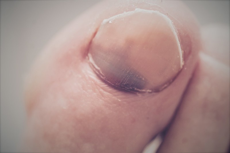 207/365. stuff distance runners say when it becomes clear they're going to lose a toenail after a long run.