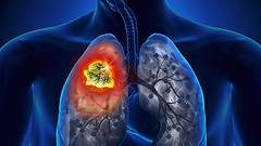 Treating lung cancer at an early stage