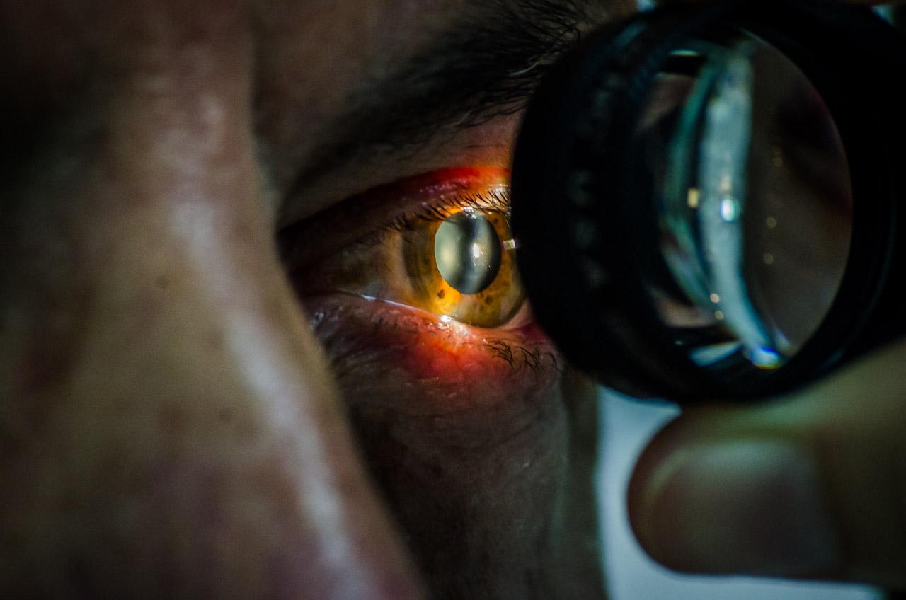 Una fotografía cercana muestran las pupilas dilatadas mientras se lleva a cabo una optometría por parte de los voluntarios de la Fundación Visión, los ojos de un paciente son examinados para calcular y corregir los defectos de la vista. (Elton Núñez)