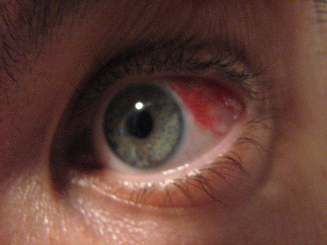 Как сделать чтобы капилляры глаз лопнули