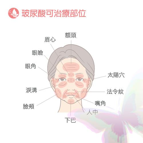 不當剩女!「輕年級」的7大顯老基因~高雄美妍醫美診所-玻尿酸注射部位